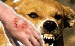 狗狗咬伤人后怎么办?